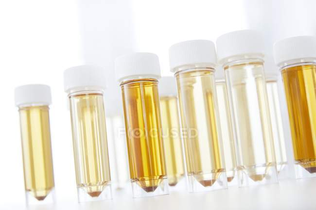 Test tubes rack with urine samples for analysis, studio shot. — Stock Photo