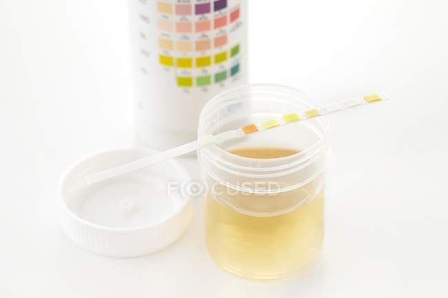 Urine sample for analysis and test strip with chart, studio shot. — Stock Photo
