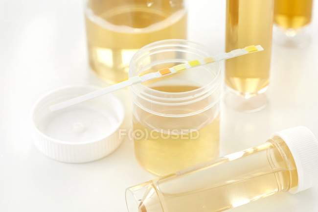 Urine samples for analysis and test strip, studio shot. — Stock Photo