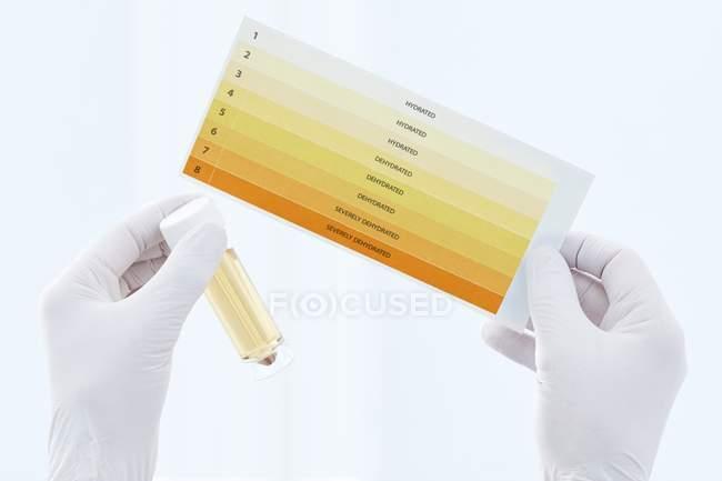 Les mains du scientifique tenant l'échantillon d'urine dans le récipient et le tableau, tir en studio . — Photo de stock