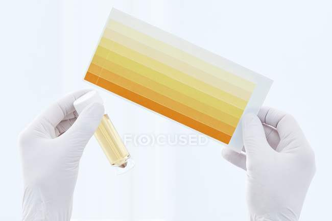 Mani di scienziati che tengono il campione di urina in contenitore e grafico, ripresa in studio . — Foto stock