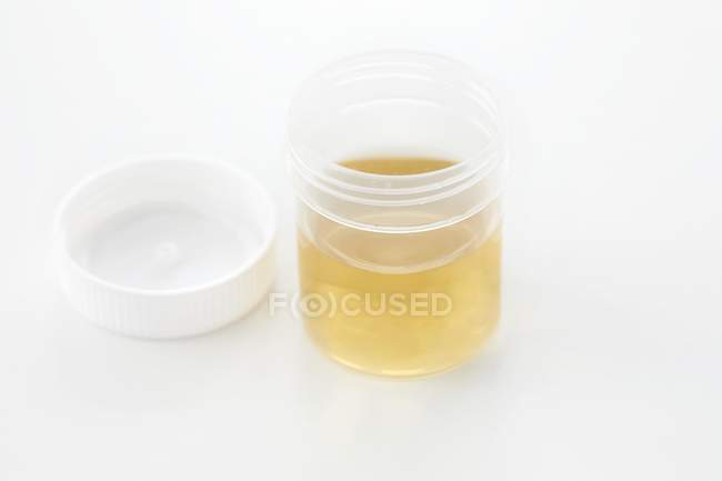 Urine sample in container for analysis, studio shot. — Stock Photo