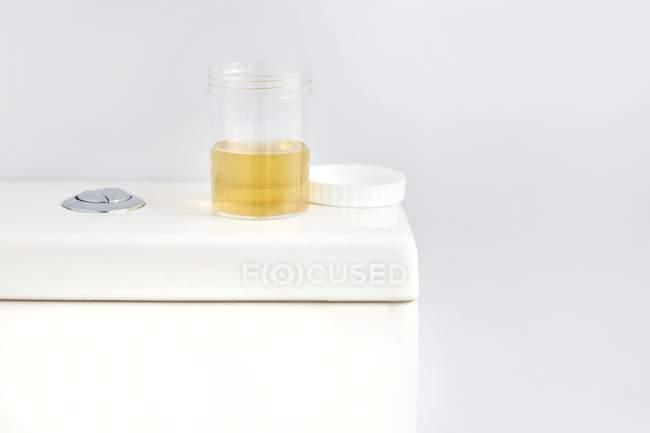 Recipiente de muestra de orina en el inodoro en el baño, toma de estudio . - foto de stock