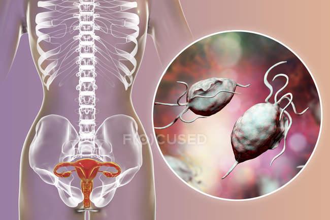 Ilustración del sistema reproductor femenino y parásito Trichomonas vaginalis causante de tricomoniasis . - foto de stock