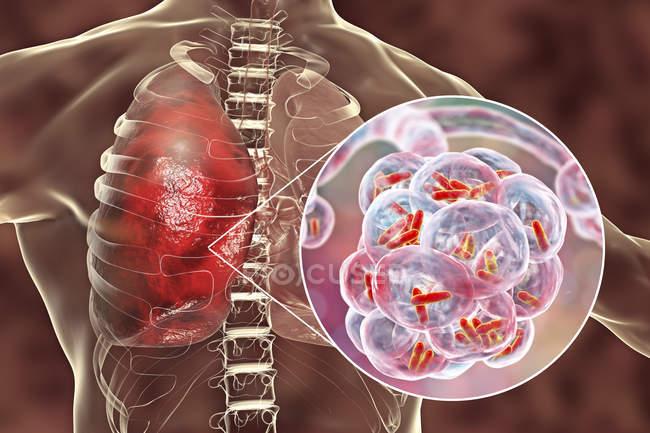 Ilustração de bactérias em forma de bastonete dentro dos alvéolos dos pulmões causando infecção do trato respiratório inferior . — Fotografia de Stock