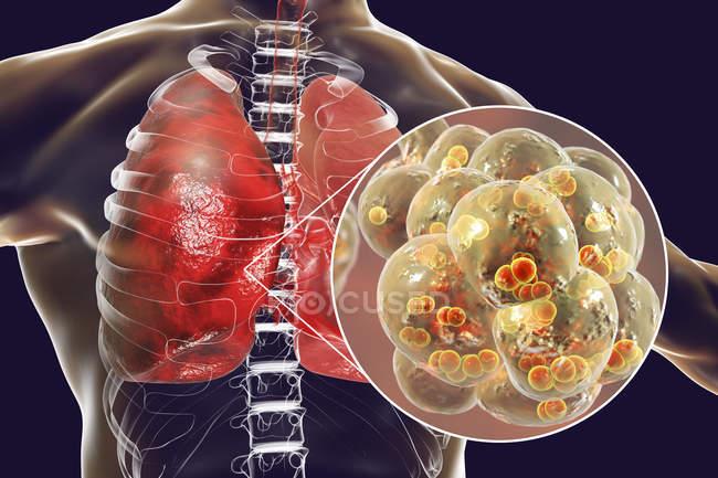 Illustrazione dei batteri Streptococcus pneumoniae all'interno degli alveoli dei polmoni che causano polmonite . — Foto stock
