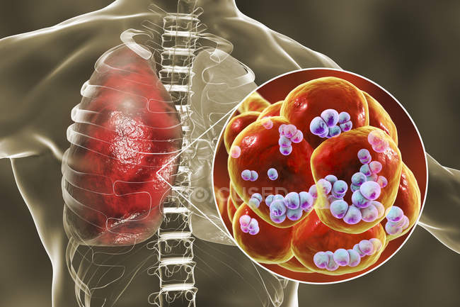 Ilustração de bactérias Streptococcus pneumoniae dentro dos alvéolos dos pulmões causando pneumonia . — Fotografia de Stock