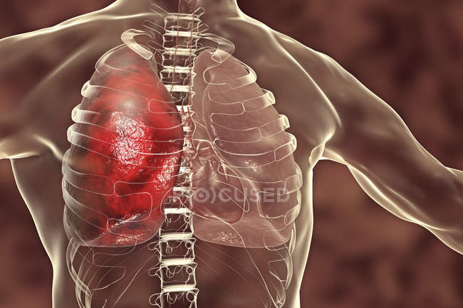 Pneumonia inflammatory condition of lung, digital illustration. — Stock Photo
