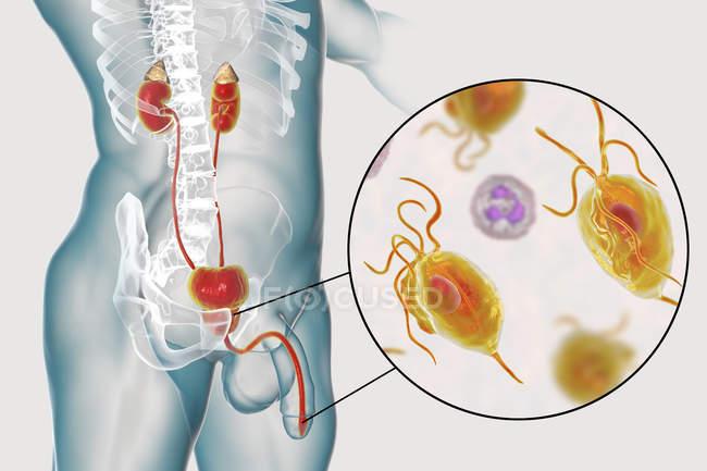 Illustration of male urinary system and parasitic Trichomonas vaginalis causing trichomoniasis. — Stock Photo
