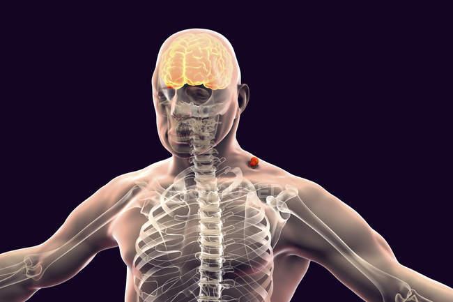 Silhouette humaine avec encéphalite transmise par les tiques inflammation cérébrale, illustration numérique . — Photo de stock