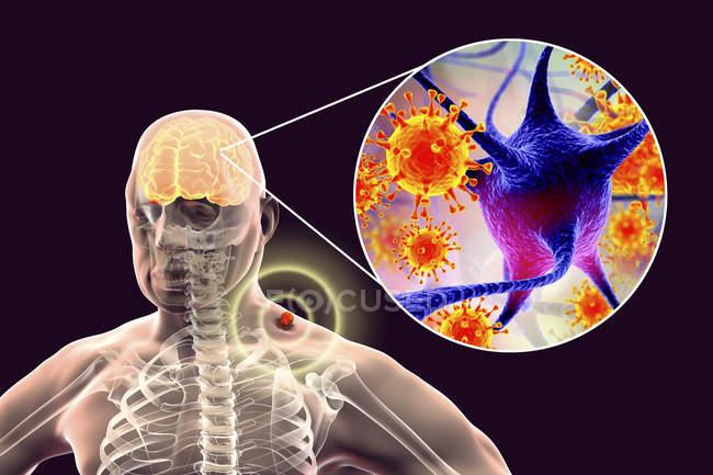 Human silhouette and tick-borne encephalitis, digital illustration. — Stock Photo
