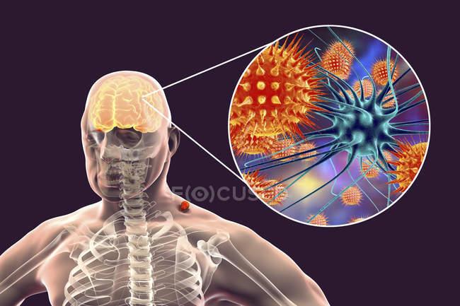 Silhouette humaine et encéphalite transmise par les tiques, illustration numérique . — Photo de stock