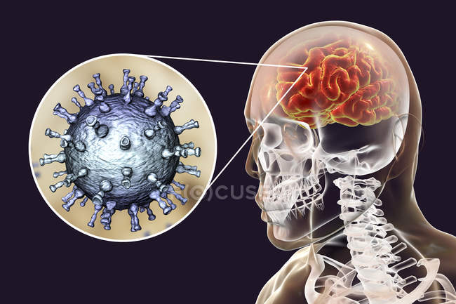 Conceptual digital illustration of encephalitis caused by varicella zoster virus. — Stock Photo