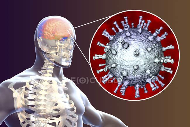 Концептуальні цифрових ілюстрація енцефаліту, викликана вірусом вітряної віспи. — стокове фото