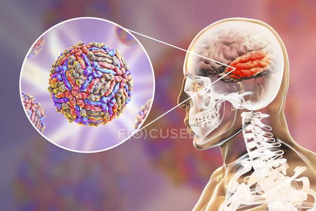 Conceptual digital illustration of encephalitis caused by West Nile virus. — Stock Photo
