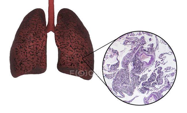 Pulmones de fumadores, ilustración digital y micrografía de luz sobre fondo blanco . - foto de stock