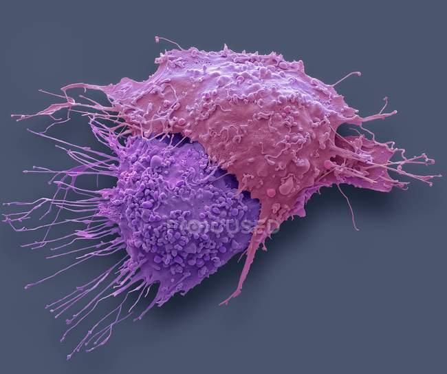Micrógrafo electrónico de barrido coloreado de células cancerosas de ovario . - foto de stock