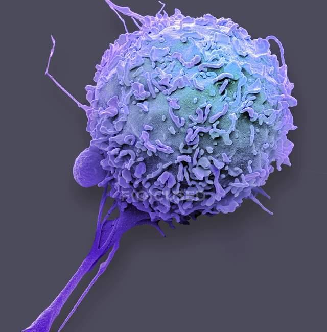 Farbige Rasterelektronenmikroskopie der weißen Blutkörperchen der Makrophagen. — Stockfoto