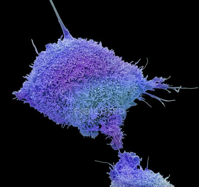 Coloured scanning electron micrograph of cultured cancer cell from human cervix showing numerous microvilli. — Stock Photo
