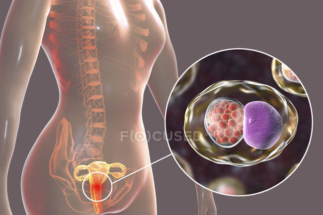 Digital illustration of female reproductive system and Chlamydia trachomatis bacteria causing Chlamydial infection. — Stock Photo