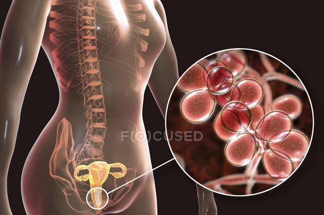 Digital illustration showing vaginitis caused by Candida albicans fungus and close-up of yeast cells. — Stock Photo