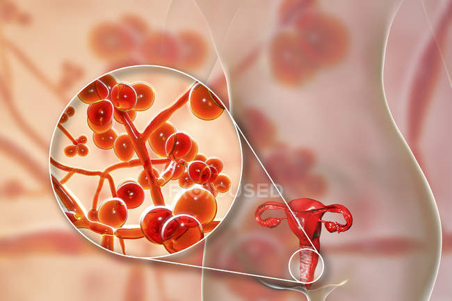 Digital illustration showing vaginitis caused by Candida auris fungus and close-up of yeast cells. — Stock Photo