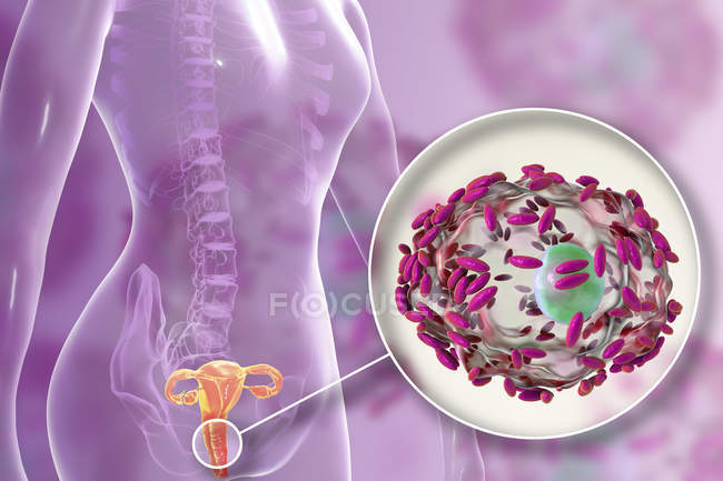 Female reproductive system and Gardnerella vaginalis bacteria attached to vaginal epithelial cells causing bacterial vaginosis, digital illustration. — Stock Photo