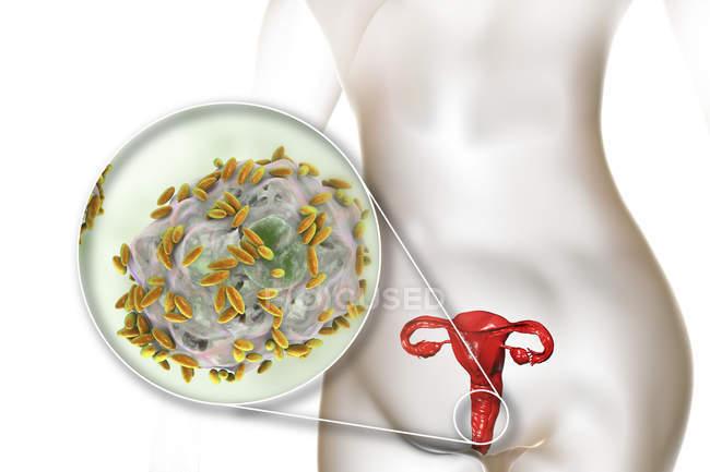 Жіночої репродуктивної системи і гарднерели vaginalis бактерій прикріплені до вагінальні епітеліальні клітини, викликаючи бактеріального вагінозу, цифрова ілюстрація. — стокове фото