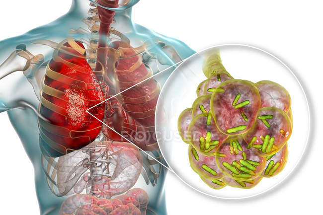 Illustrazione digitale di batteri a forma di asta all'interno di alveoli polmonari che causano polmonite . — Foto stock