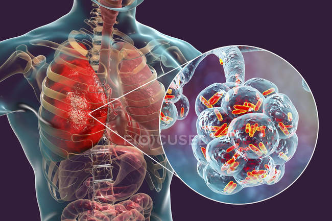 Digital illustration of rod-shaped bacteria inside alveoli of lungs causing pneumonia. — Stock Photo