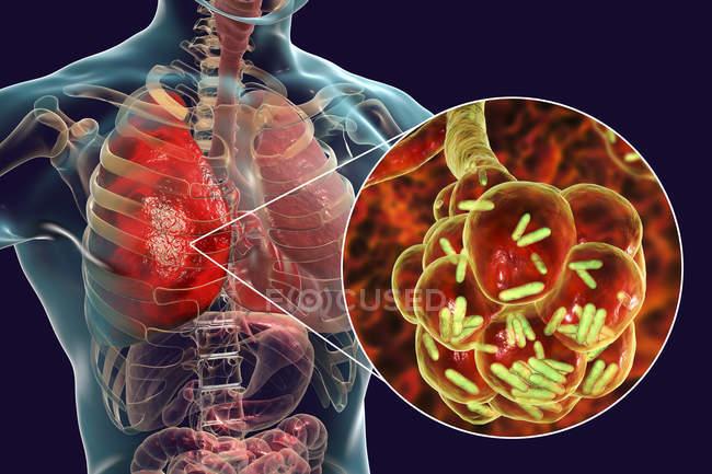 Digitale Illustration von stäbchenförmigen Bakterien in Lungenbläschen, die Lungenentzündung verursachen. — Stockfoto