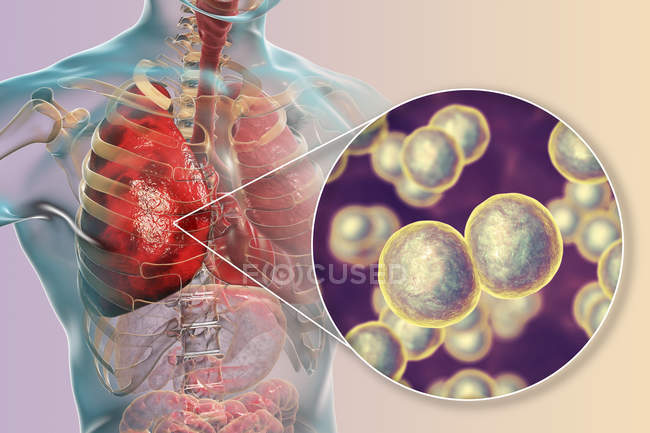 Pneumonia caused by bacteria Moraxella catarrhalis, digital illustration. — Stock Photo
