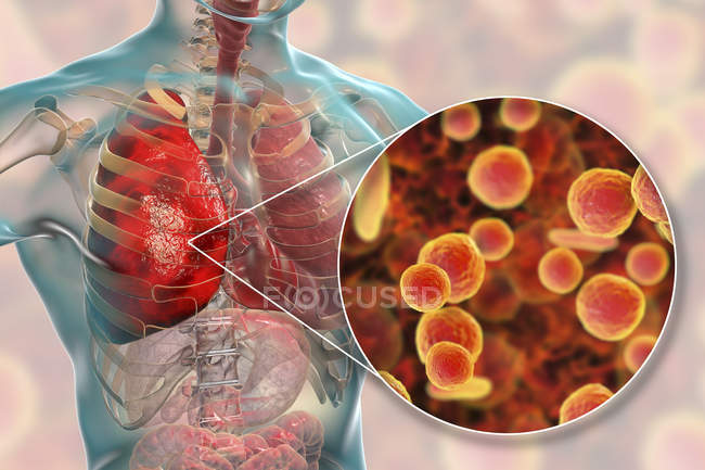 Lungenentzündung durch Mycoplasma pneumoniae Bakterien, konzeptionelle digitale Illustration. — Stockfoto