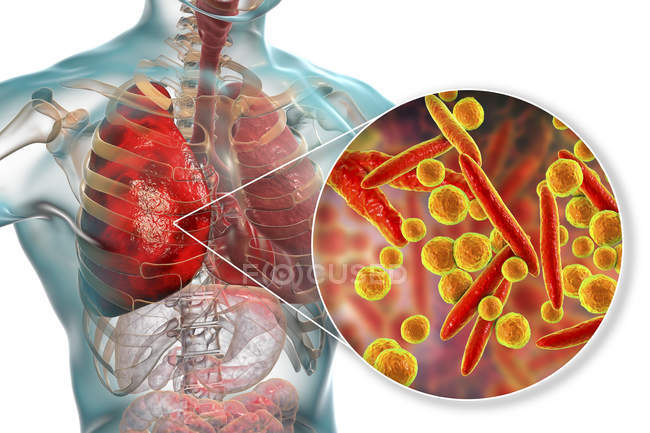 Polmonite causata da batteri Mycoplasma pneumoniae, illustrazione digitale concettuale . — Foto stock