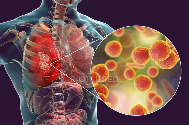 Polmonite causata da batteri Mycoplasma pneumoniae, illustrazione digitale concettuale . — Foto stock