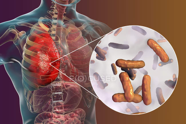 Lungenentzündung durch Bakterien pseudomonas aeruginosa, digitale Illustration. — Stockfoto