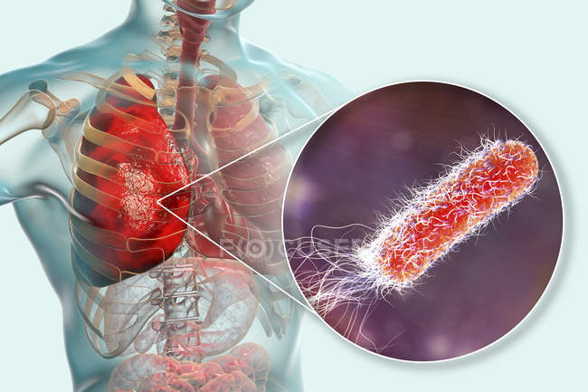 Lungenentzündung durch Bakterium pseudomonas aeruginosa, digitale Illustration. — Stockfoto