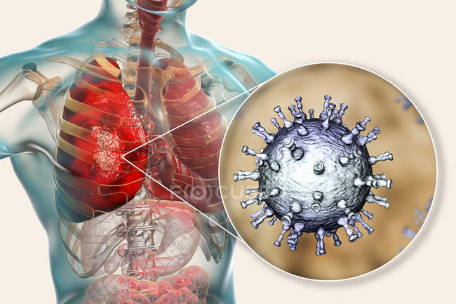 Pneumonia caused by varicella zoster virus, digital illustration. — Stock Photo