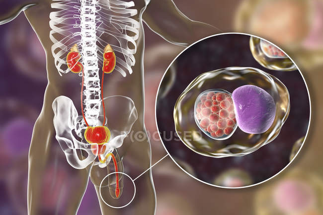 Digital illustration of male silhouette with urethral smear showing Chlamydial infection with bacteria Chlamydia trachomatis. — Stock Photo