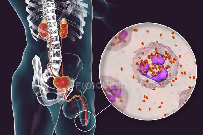 Primer plano de la infección por gonorrea bacteriana en el cuerpo masculino, ilustración digital . - foto de stock