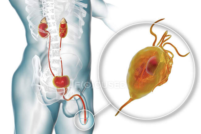 Цифровая Иллюстрация мужской репродуктивной системы и паразитический микроорганизм Trichomonas vaginalis, вызывая трихомониаз. — стоковое фото