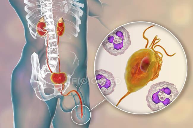 Ilustración digital del sistema reproductor masculino y del microorganismo parasitario Trichomonas vaginalis causante de tricomoniasis . - foto de stock
