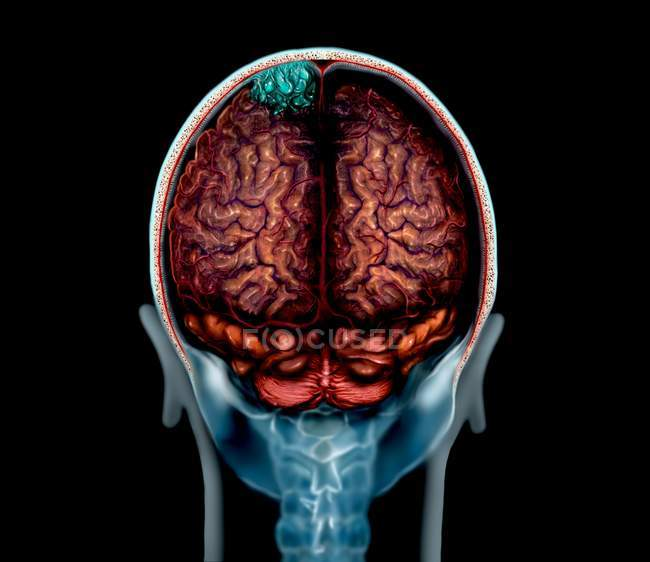 Blue brain tumour on magnetic resonance imaging scan, illustration. — Stock Photo