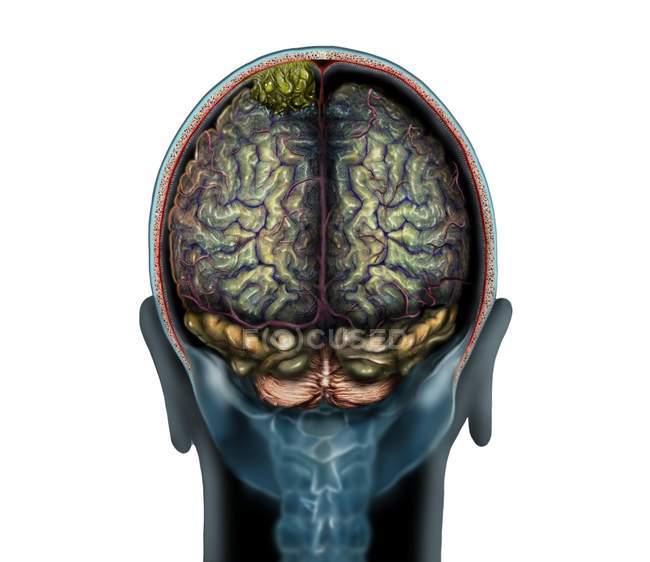 Yellow brain tumour on magnetic resonance imaging scan, illustration. — Stock Photo