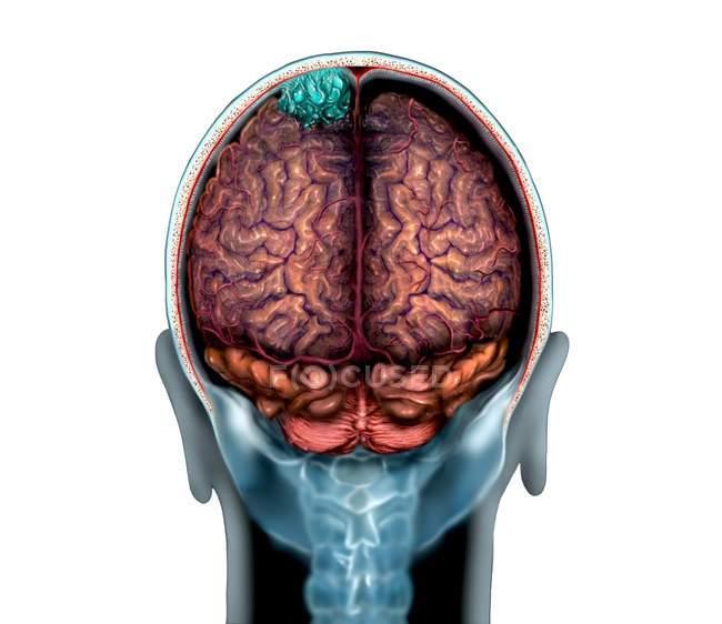 Синій мозку пухлина на магнітно-резонансна томографія сканування, ілюстрація. — стокове фото