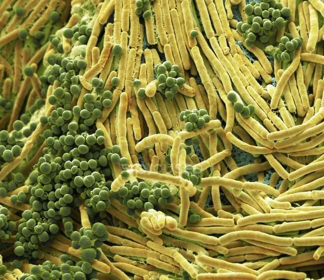 Цвет сканирования электронная микрофотография бактерий, культивируемых с мобильного телефона. — стоковое фото