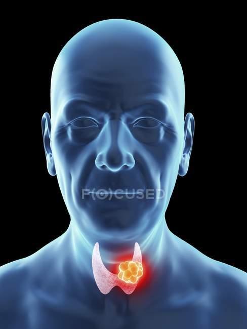 Illustration der Silhouette eines älteren Mannes mit sichtbarem Schilddrüsenkrebs. — Stockfoto