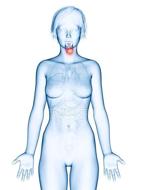 Ilustración médica del cáncer de laringe en la silueta femenina . - foto de stock