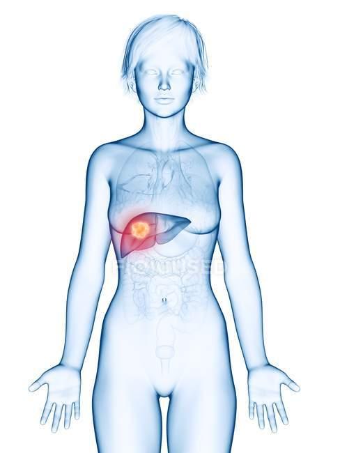 Медичні ілюстрація раку печінки в жіночий силует. — стокове фото