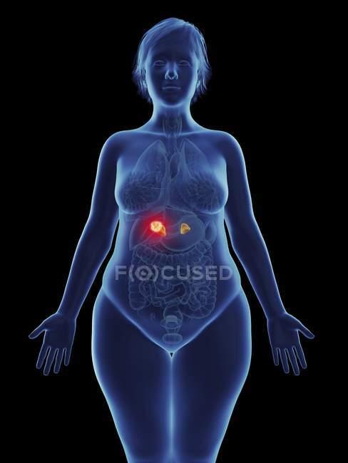 Иллюстрация раковой опухоли в женских надпочечника. — стоковое фото